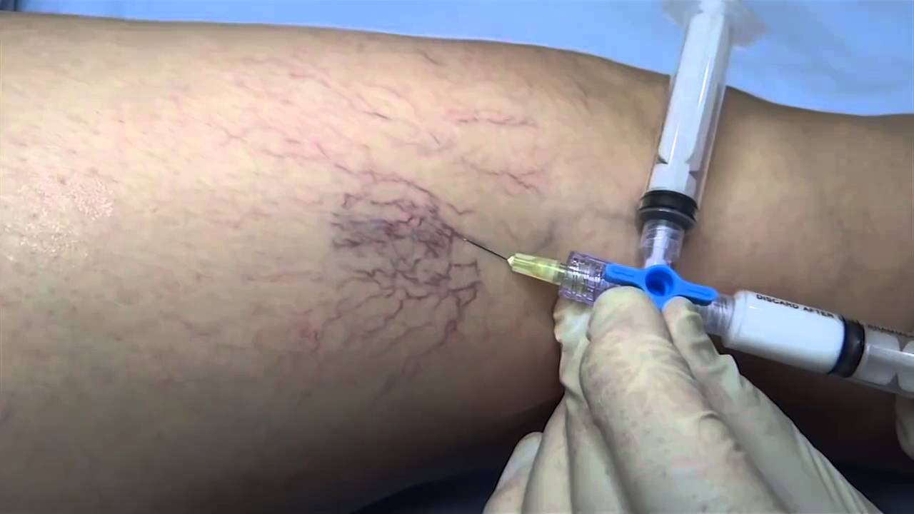 Escleroterapia varices