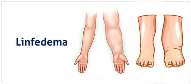 tratamiento preventivo del linfedema quirurgico