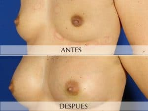 Lipoestructura corporal mamas