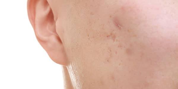tratamiento post acne