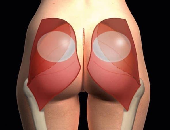 prótesis glúteas