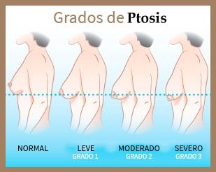 aumento y levantamiento mamario
