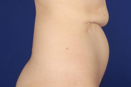 reconstrucción abdominal-antes