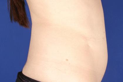 reconstrucción abdominal - después (2)