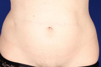 reconstrucción abdominal-después