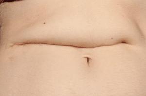 reconstruccion abdominal