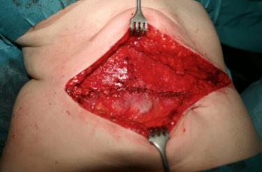 reconstruccion abdominal-durante la cirugia