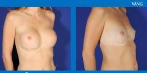 extraer los implantes mamarios