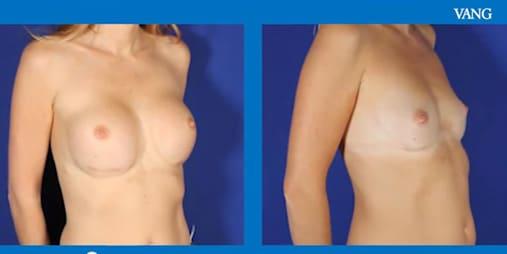 retirada de implantes mamarios