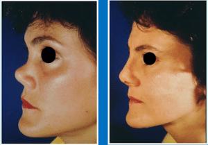 la rinoplastia de la nariz hundida