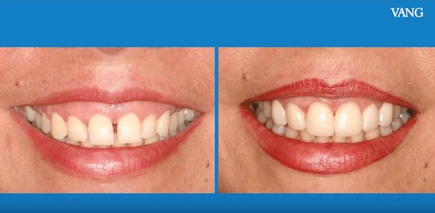 la solución a la sonrisa gingival