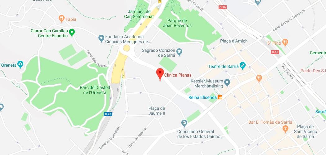 Bolas de Bichat | Clínica Planas Barcelona Madrid