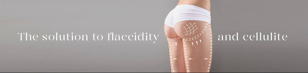 Body laxity. Thermage