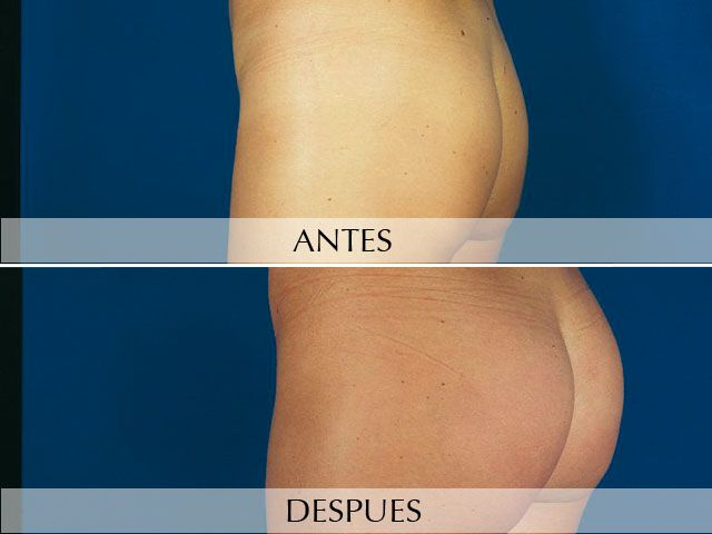 Gluteus Augmentation