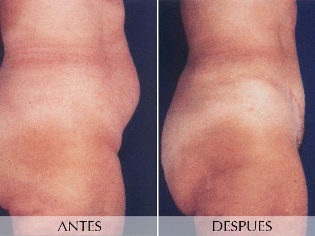 Cirurgia de l'abdomen
