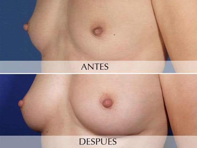 Breast augmentation with own fat
