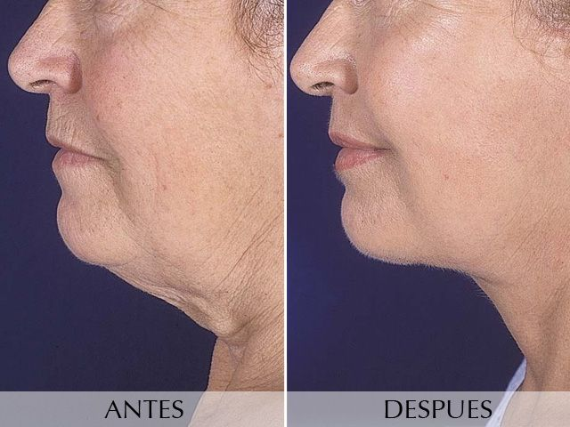 Face lifting