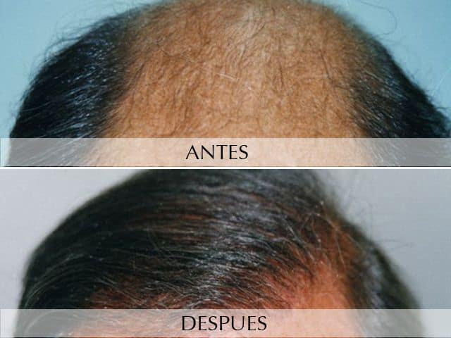 Hair micro-grafts
