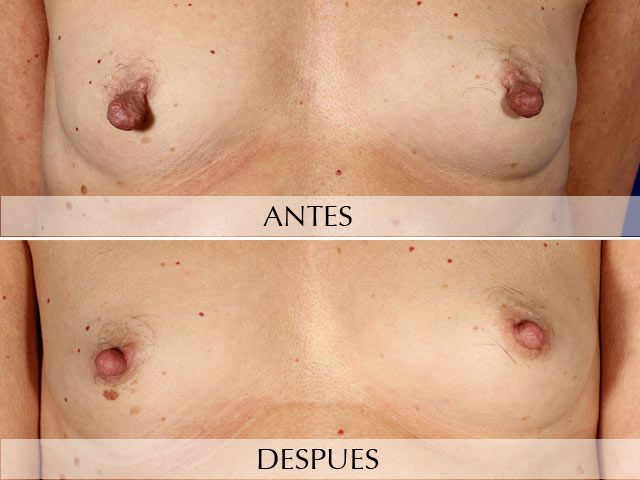 Reducción Areolas /Pezón