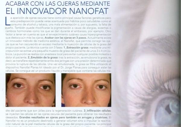 Acabar con las ojeras mediante el innovador Nanofat