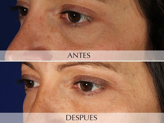 Removal of dark circles