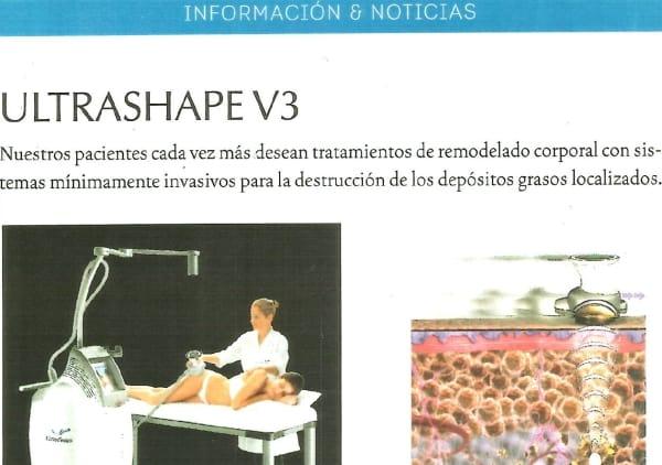 Ultrashape V3