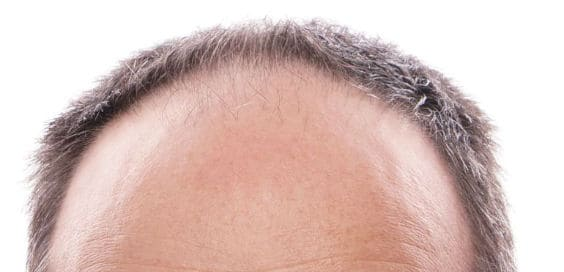 Técnicas para solucionar al alopecia