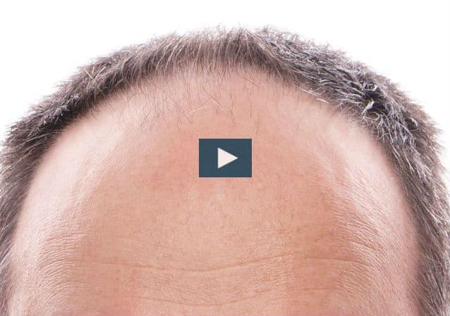 ¿Cómo solucionar la alopecia?