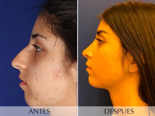 Cirurgía del nas