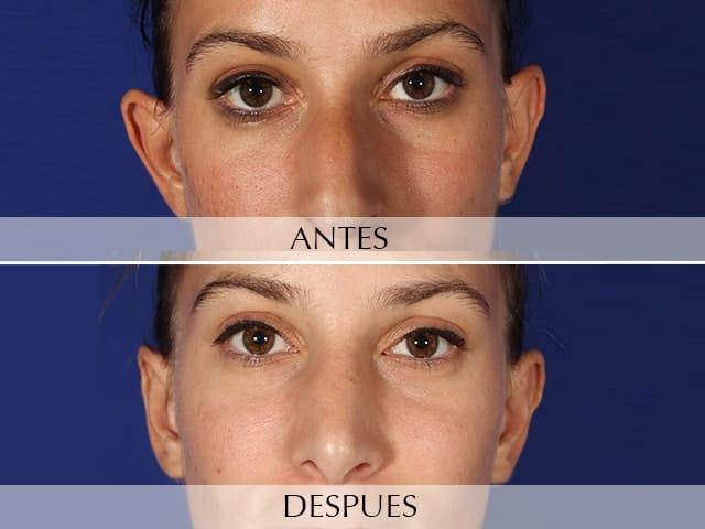 orejas operadas antes y despues de adelgazar