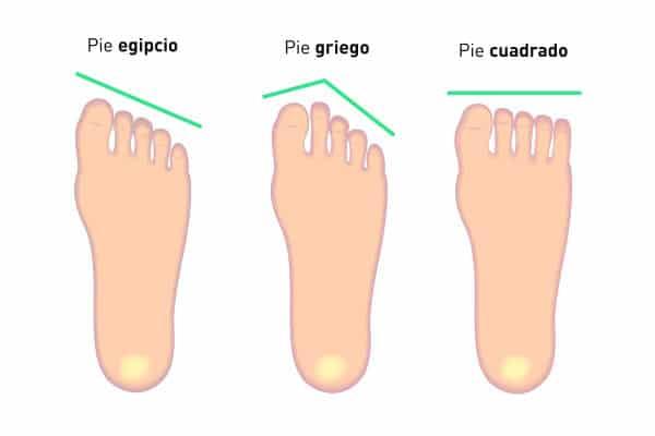 Qué tipos de pie existen y qué características tienen