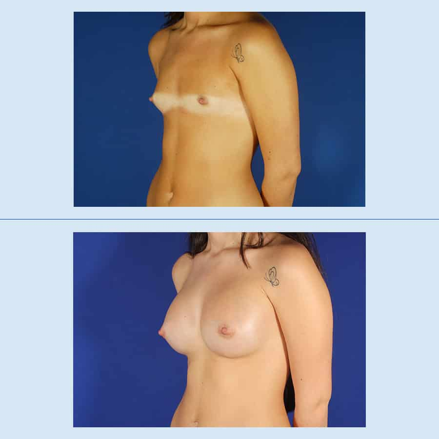 Breast augmentation with prosthesis