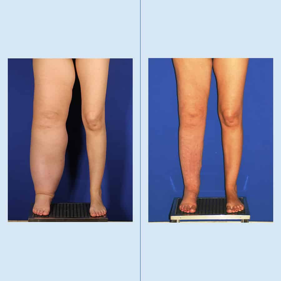 Lymphedema and Lipedema Surgery