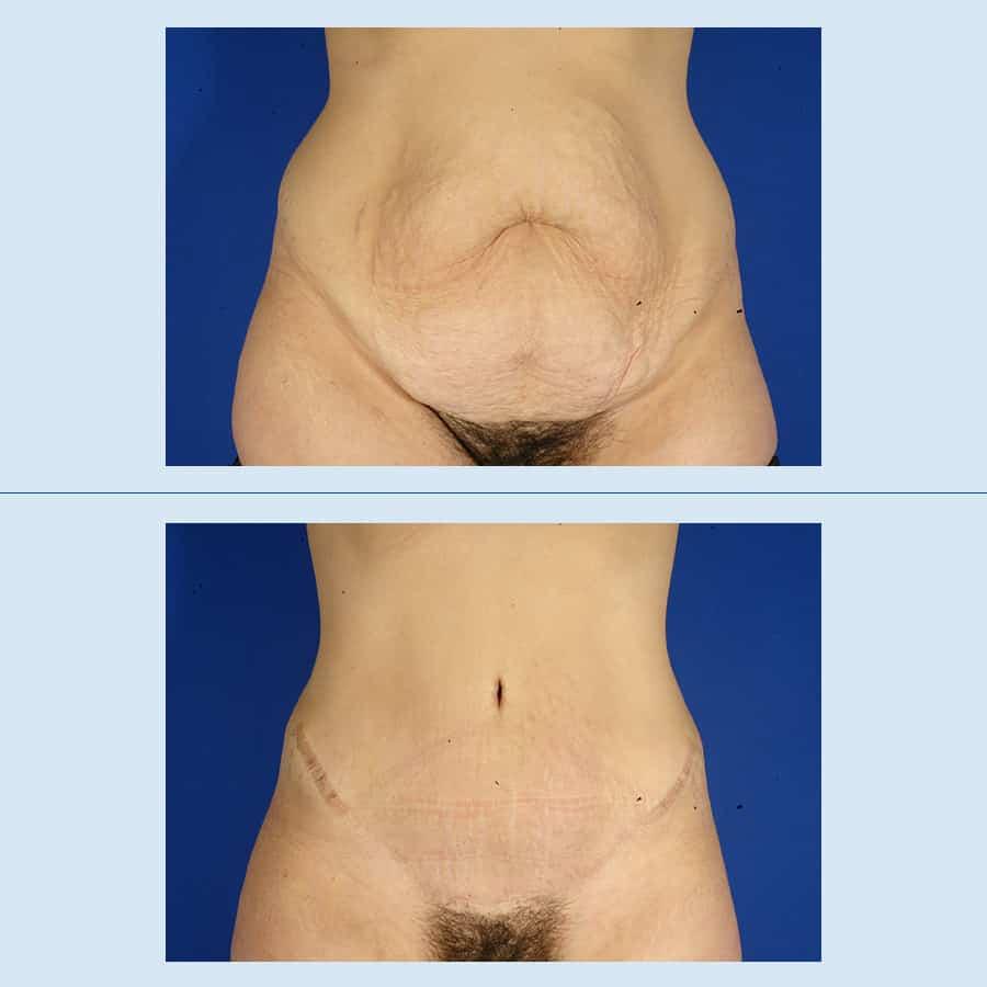 Como eliminar la piel flacida del estomago