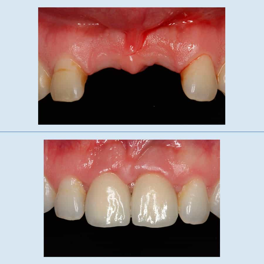Periodontics and Dental Implants