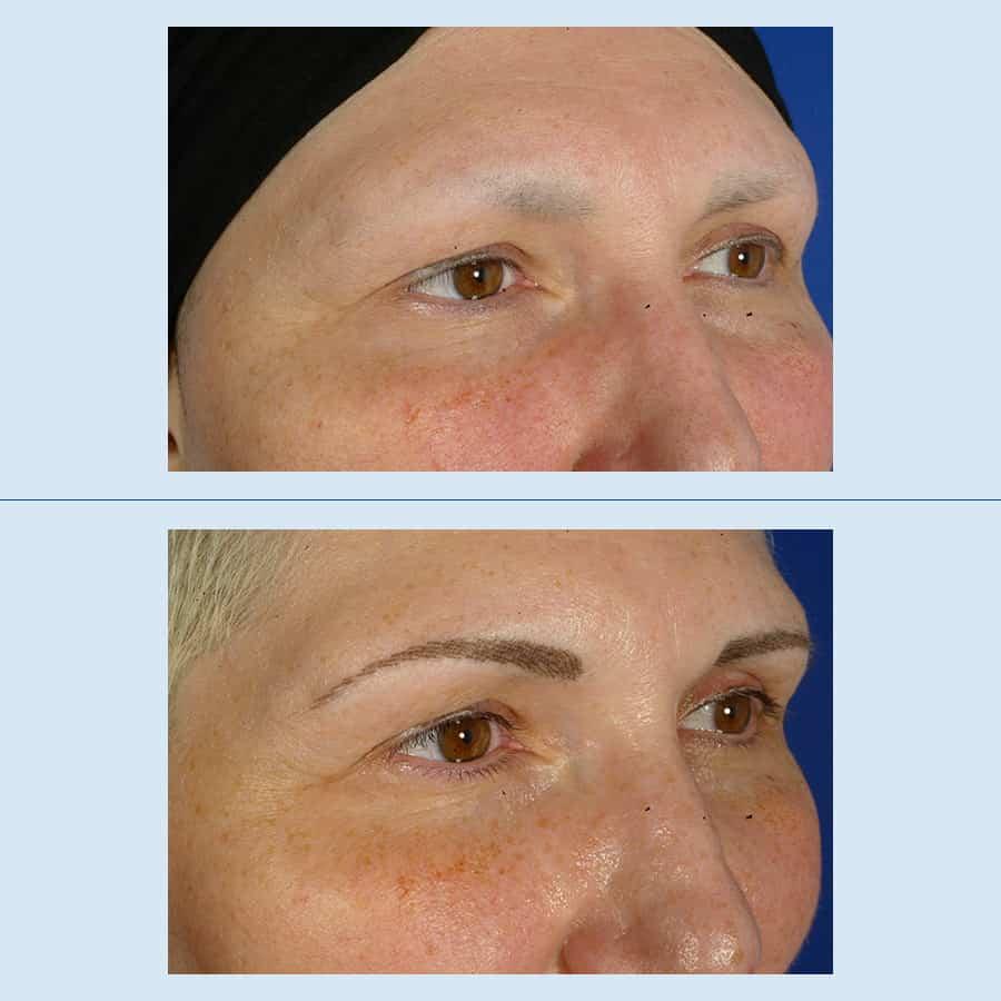 Micropigmentation