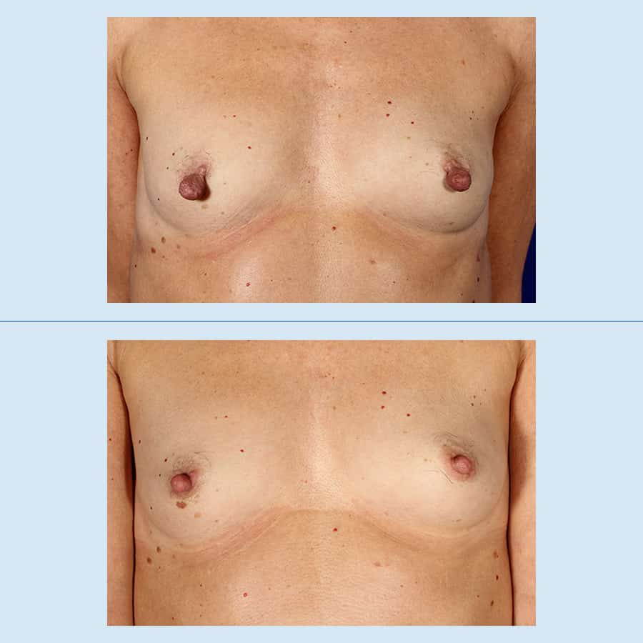 Areola / Nipple Reduction Surgery