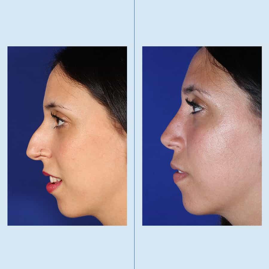 Ultrasonic Rhinoplasty