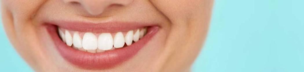 Gingival Smile