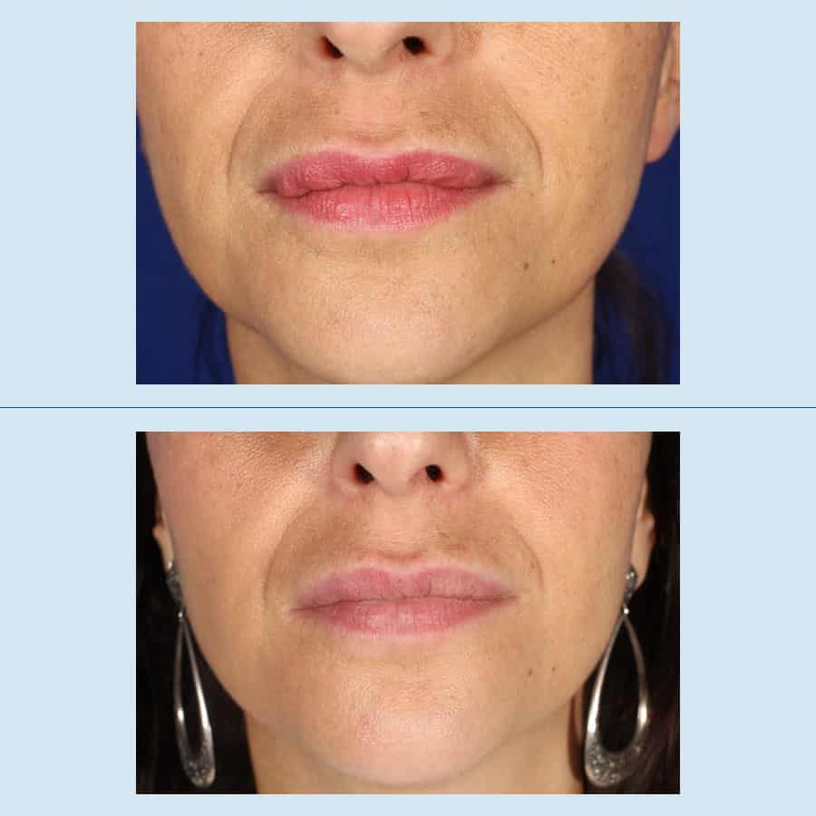 Removal of facial fillers