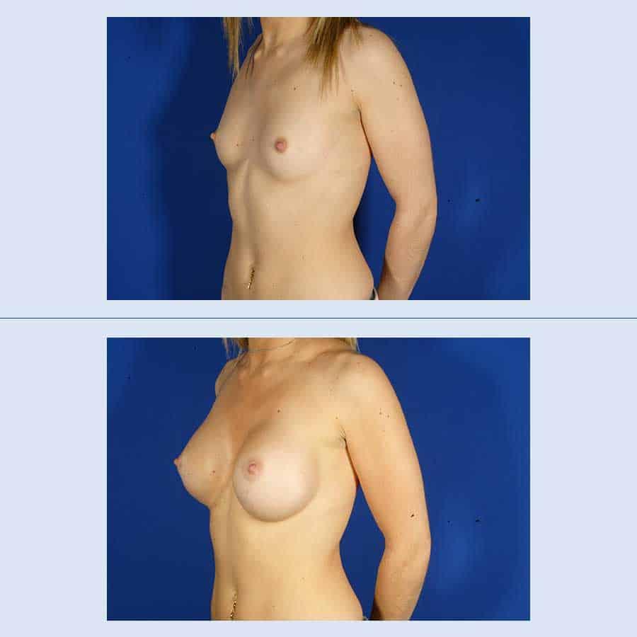 Augment de mames amb pròtesi